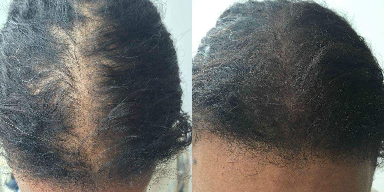 saç hilesi öncesi sonrası